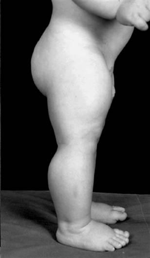 Musculatura de un niño Alemán de 4 años que posee ambas copias mutadas del gen de la Miostatina.